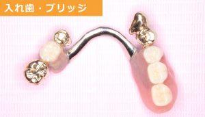 入れ歯・ブリッジ 埼玉県久喜市 いしはた歯科